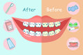 Before And After Teeth Royalty Free Stock Images - 82639849