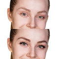 Female Eyes Before And After Eyelash Extension. Stock Images - 85812604