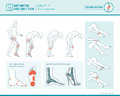 Foot Pain And Arthritis Infographic Stock Photography - 90415692