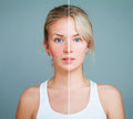 Young Model Woman With Skin Problem Stock Photo - 90717890