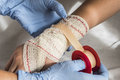 Close-up Of A Nurse Tying Bandage On Patient`s Foot Stock Photos - 93381983