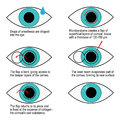 Procedure Of Laser Correction Of Vision Step By Step. Infographics Stock Photo - 95517010