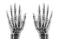 Film X-ray Both Hand AP Show Normal Human Hands On White Background & X28; Isolated & X29; Royalty Free Stock Photography - 96749757