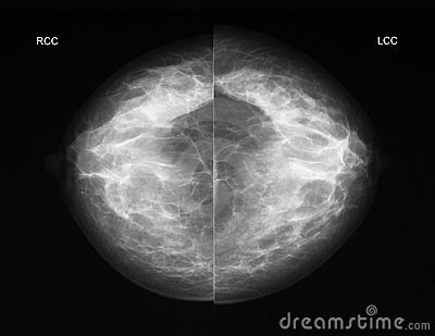 Mammography in CC projection