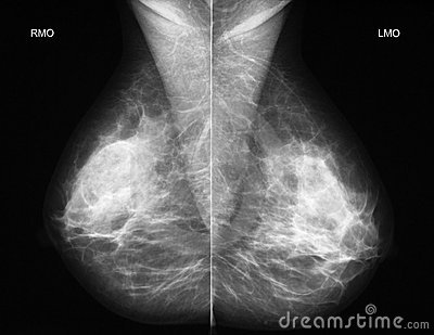 Mammography in oblique projection