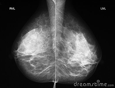 Mammography in mediolateral projection
