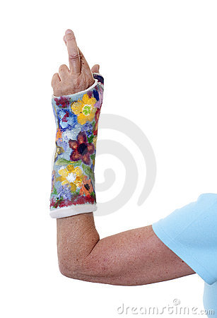 Woman's arm in painted cast