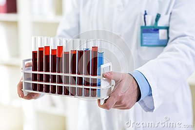 Young lab technician holding tubes at clinic