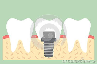 Dental implant with crown, anatomy structure including