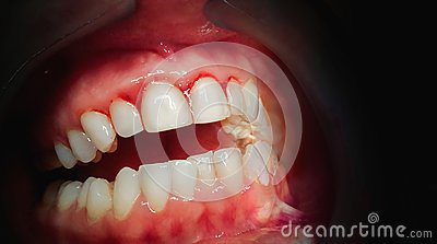 Mouth with bleeding gums on a dark background.