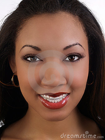 Smiling young black woman with braces upper teeth