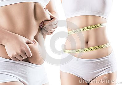 Collage of fat woman with abdominal folds.