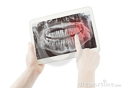 Hands showing pain on teeth radiology or radiography and pc tablet