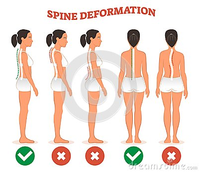Spine deformation types and healthy spine comparison diagram poster.