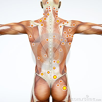 Back view of a man and his trigger points. Anatomy muscles. 3d rendering