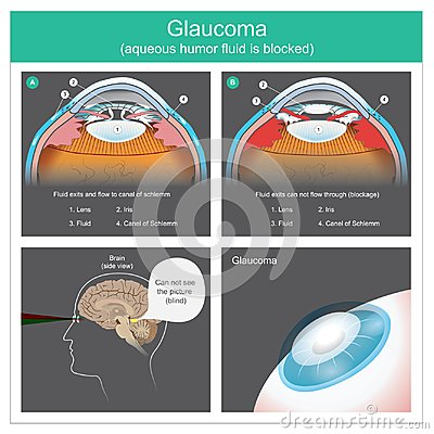 Glaucoma. Aqueous humour fluid exits and flow to canal of schlemm human eyes. Illustration.