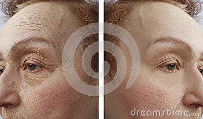 Face of an elderly woman wrinkles dermatology procedure before and aftetherapy r