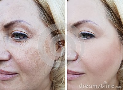 Girl face wrinkles before and after, correction cosmetic lifting pigmentation