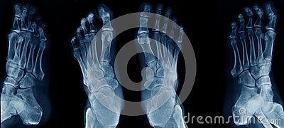 Collection foot x-ray