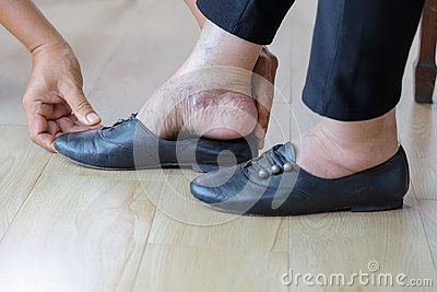 Elderly woman putting on shoes with care giver.