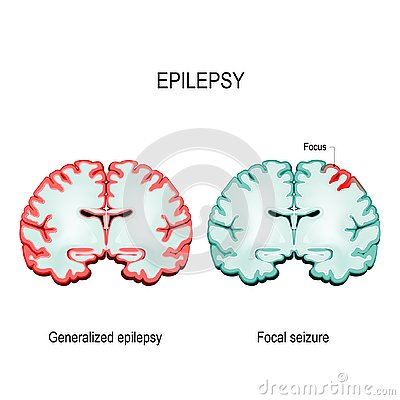 Primary generalized epilepsy and focal seizures