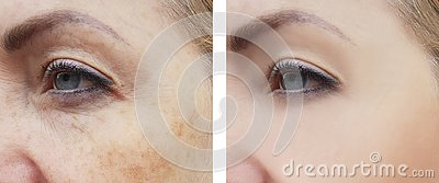 Woman face wrinkles pigmentation difference correction treatment health before and after procedures
