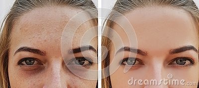 Eye girl bag under the eyes before and after treatment cosmetic procedures