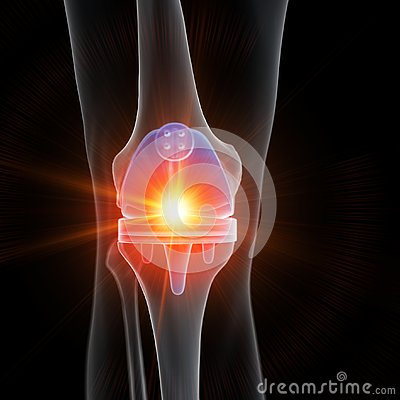 A knee replacement