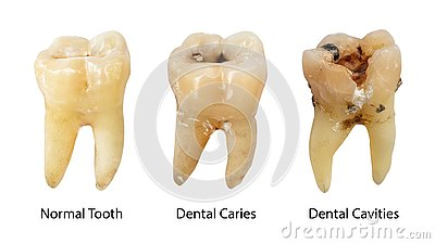 Normal tooth , Dental caries and Dental cavity with calculus . Comparison between difference of teeth decay stages . White