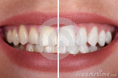 Woman`s Teeth Before And After Whitening