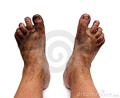 Dirty unhygienic foots
