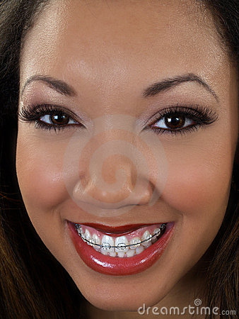 Tight portrait of smiling black woman with braces