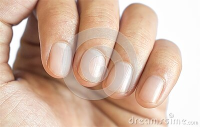 Small lunulae or half-moons at fingernails with longitudinal lines of Southeast Asian, Chinese young man