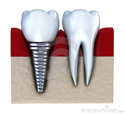 Dental implant - implanted in jaw bone