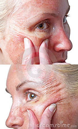 Skin condition after chemical peeling TCA.