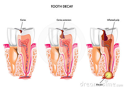 Tooth decay dentistry enamel fluoride gum gums hygiene infection inflammation jaw mouth odontologist oral pain pathology plaque pulp pulpitis sugars tartar teeth ccuart Gallery