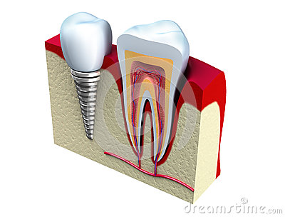 Anatomy of healthy teeth and dental implant in jaw