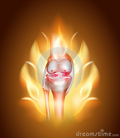 Knee joint pain, burning knee