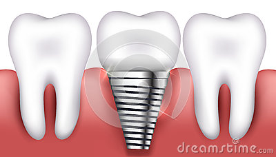 Dental implant and normal teeth