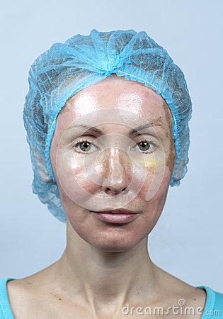 Cosmetology. New skin after a chemical peeling, a redness because of too fast deleting an old layer