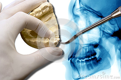 Orthodontics tool show molar tooth over x-ray
