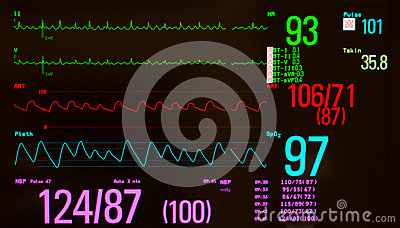 Atrial Flutter and Vital Signs