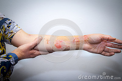 Skin burns on human arm