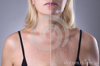 Rejuvenation woman`s skin, before after anti aging concept, wrinkle treatment, facelift and plastic surgery