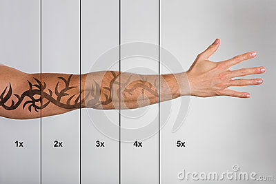 Laser Tattoo Removal On Man`s Hand