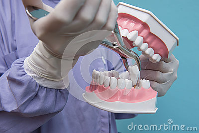 The dental model is used to Demonstration of tooth extraction by doctors.