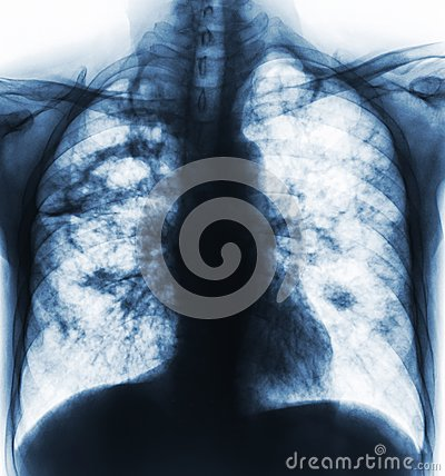 Pulmonary tuberculosis . Film x-ray of chest show cavity at right lung and interstitial infiltrate both lung due to TB infection