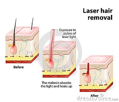 201 Pilation De Laser Diagramme De Vecteur Illustration De