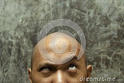 łysa głowa
