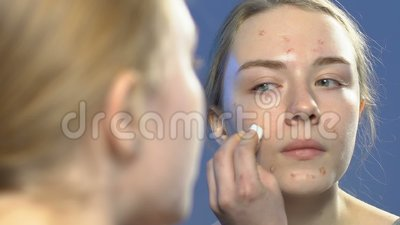 Żeński nastolatek stosuje kosmetycznego traktowanie na twarzy krostach, trądzik skóry opieka zbiory wideo